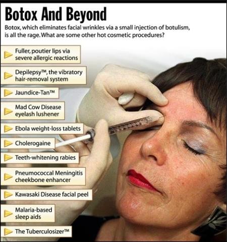 Botox, yo