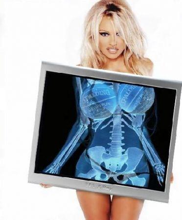 Pamela Anderson X Ray